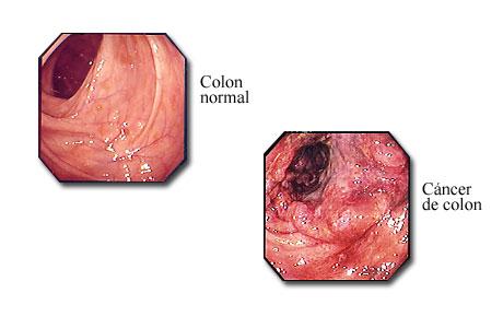 Cáncer de colon visible con un colonoscopio