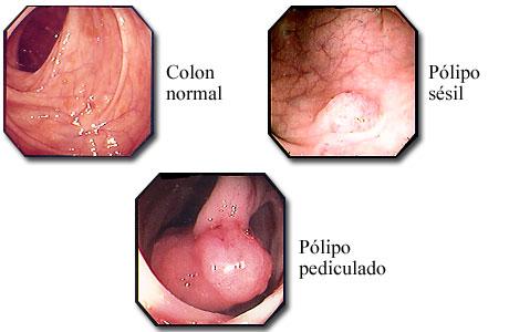 Pólipos de colon visibles con un sigmoidoscopio