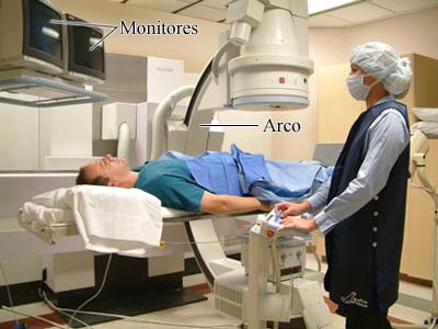 Cómo se realiza una angiografía