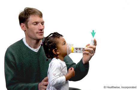 Presionar el inhalador para rociar medicamento en el espaciador