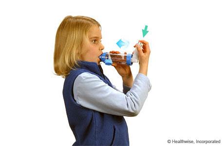 Una niña presionando el inhalador e inhalando