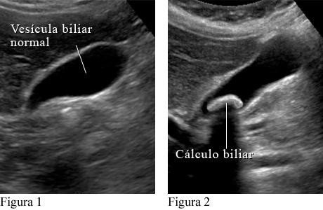 Ecografía abdominal de la vesícula biliar