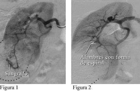Imagen de angiografía de una masa renal