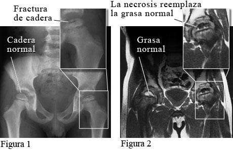 Imagen de la enfermedad de Legg-Calve-Perthes