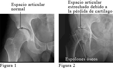 Radiografía de osteoartritis de la cadera