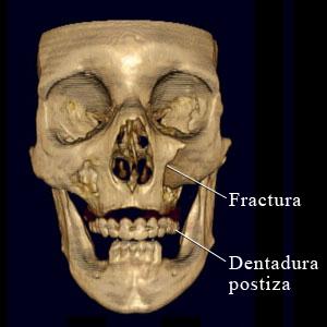 Tomografía computarizada de una fractura facial