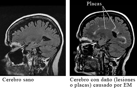 MRI de esclerosis múltiple