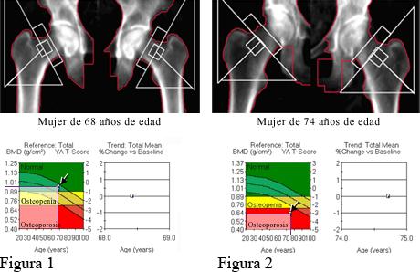 DXA de huesos de la cadera normales y DXA de huesos de la cadera con osteoporosis
