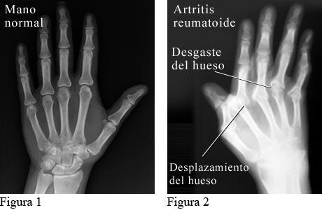Radiografía que muestra artritis reumatoide en las manos