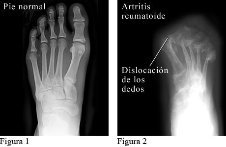 Radiografía de artritis reumatoide en los pies