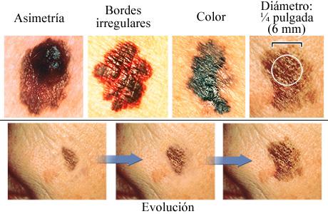 Los ABCDE del melanoma