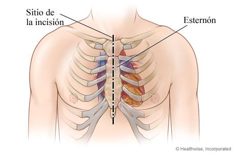 Sitio de la incisión en el pecho para la cirugía de reemplazo de la válvula aórtica