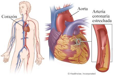 El corazón, con detalle de una arteria coronaria estrechada por la placa