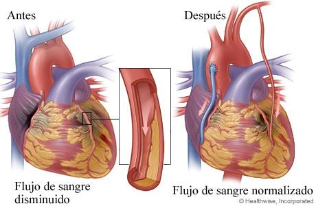 Flujo de sangre reducido a causa de una arteria estrechada u obstruida antes de la cirugía y flujo de sangre normal después de la cirugía