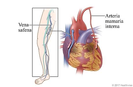 Ubicación de la vena safena en la pierna, y el corazón que muestra la vena safena y una arteria mamaria interna utilizada para evitar la arteria coronaria enferma