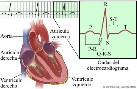 Imagen de los componentes e intervalos en un ECG (electrocardiograma)