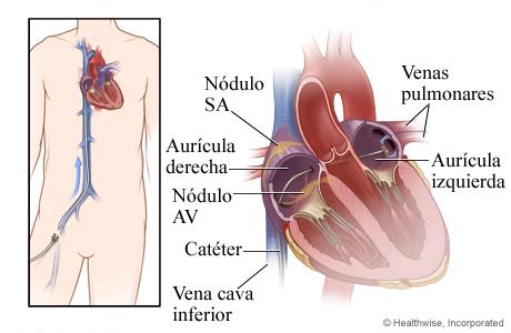 Cómo se inserta un catéter a través de una vena hasta el corazón