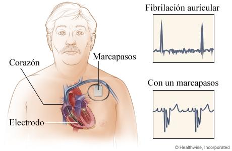 Ubicación del marcapasos en el pecho, con detalle de los resultados de los electrocardiogramas antes y después de su colocación