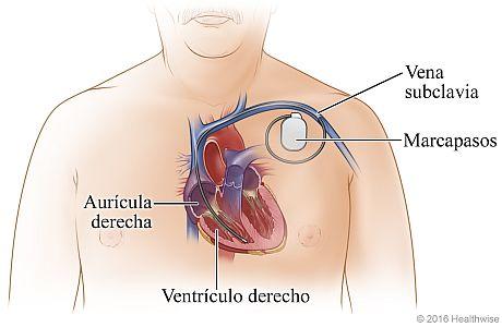 Ubicación del marcapasos en la parte superior izquierda del pecho, que muestra su derivación a través de la vena subclavia y dentro del ventrículo derecho