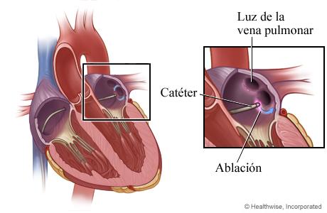 Se destruye tejido cardíaco (ablación)