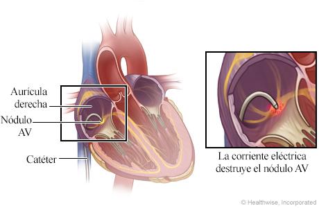 Ubicación del catéter en el corazón, con detalle de la corriente eléctrica destruyendo el nódulo AV