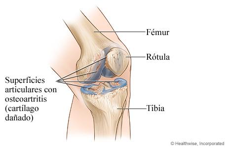 Articulación de la rodilla con osteoartritis