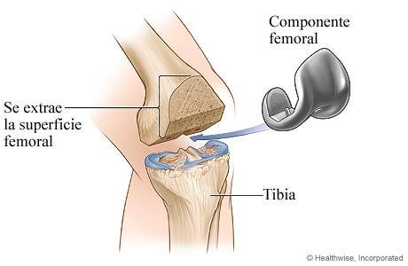 Artroplastia de rodilla: Componente femoral