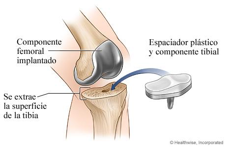 Artroplastia de rodilla: Componente tibial