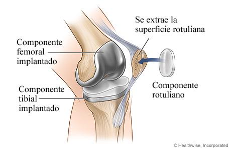 Artroplastia de rodilla: Componente rotuliano