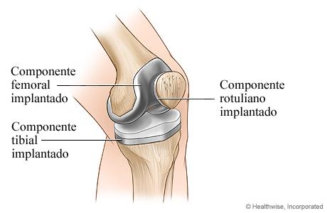 Artroplastia de rodilla finalizada
