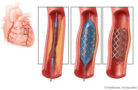 Endoprótesis coronaria