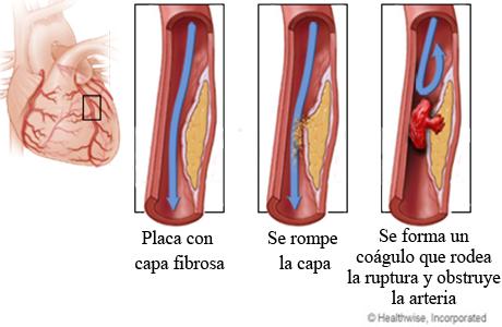 Ruptura de placa y formación de un coágulo en una arteria coronaria