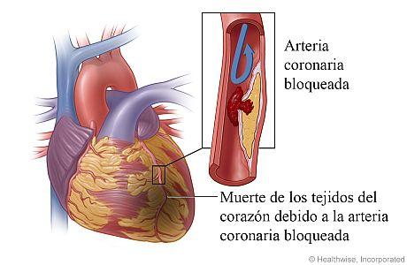 Daño al corazón causado por un ataque al corazón