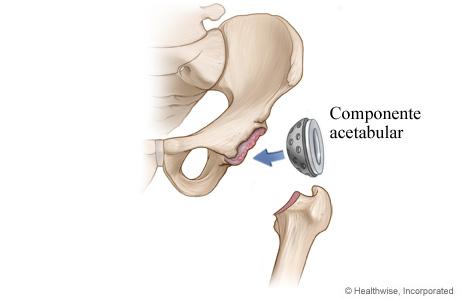 Artroplastia de cadera: Paso 2 - Se coloca el componente de la cavidad de la cadera
