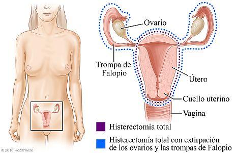 Histerectomía total e histerectomía total con extirpación de los ovarios y las trompas de Falopio