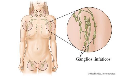 Ganglios linfáticos y su ubicación en el cuerpo