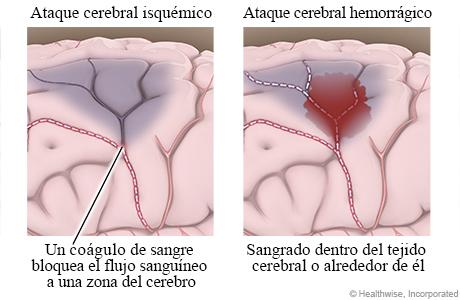 Comparación del daño cerebral causado por un coágulo de sangre (o ataque cerebral isquémico) y por sangrado (o ataque cerebral hemorrágico)