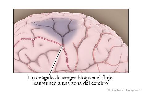 Un coágulo de sangre bloquea el flujo sanguíneo a una zona del cerebro