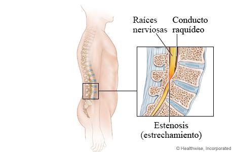 Imagen de la estenosis espinal lumbar