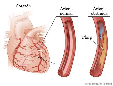 Arteria coronaria normal y arteria estrechada por la placa
