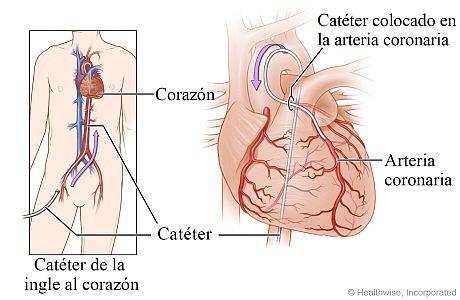 Catéter guiado desde la ingle hasta el corazón, con detalle del catéter en una arteria coronaria