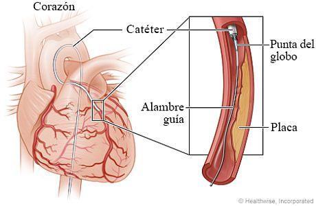El alambre guía y la punta del globo en una arteria coronaria estrechada