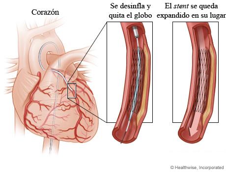 Globo desinflado que deja un stent expandido en su lugar