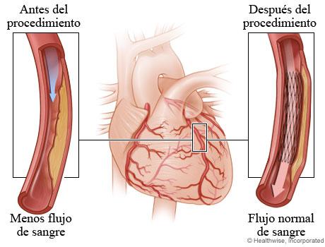Menor flujo de sangre a causa de una arteria estrechada antes de la angioplastia comparado con flujo normal de sangre después de la angioplastia