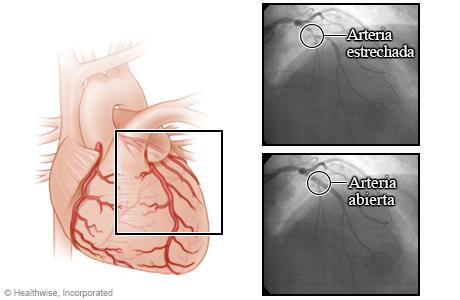 Arterias antes y después de una angioplastia