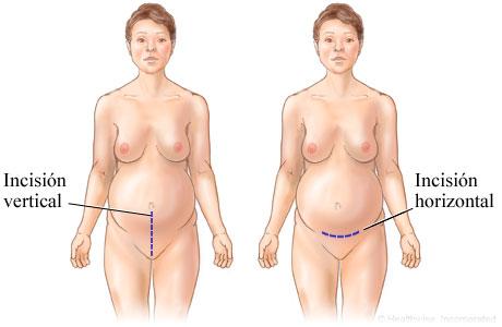 Imagen de incisiones de una cesárea
