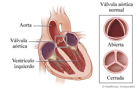 Ubicación de la válvula aórtica en el corazón y detalle de válvula abierta y cerrada