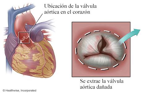 Ubicación de la válvula aórtica en el corazón y detalle de la válvula aórtica dañada