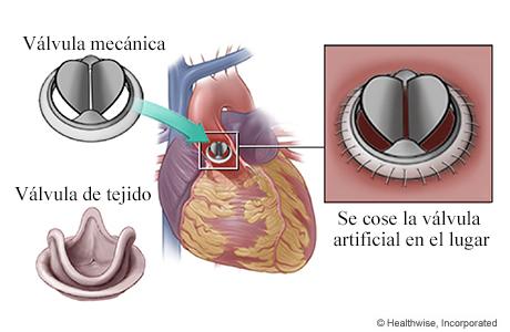 Válvulas aórticas mecánica y de tejido y detalle de la válvula artificial cosida en el lugar