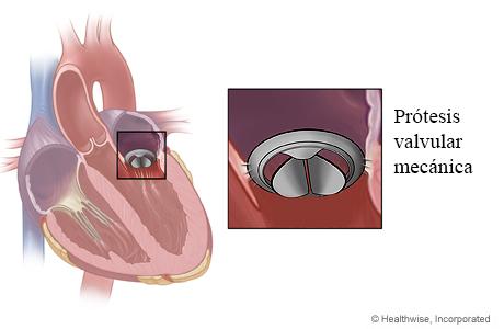 Ubicación de la válvula mitral en el corazón y detalle de una prótesis valvular mecánica